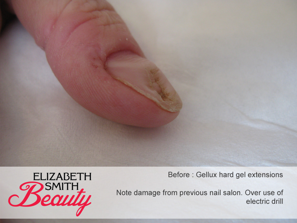 damaged nail by electric drill