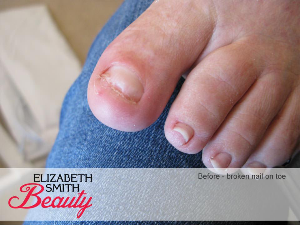 Repair of Broken Toe Nail