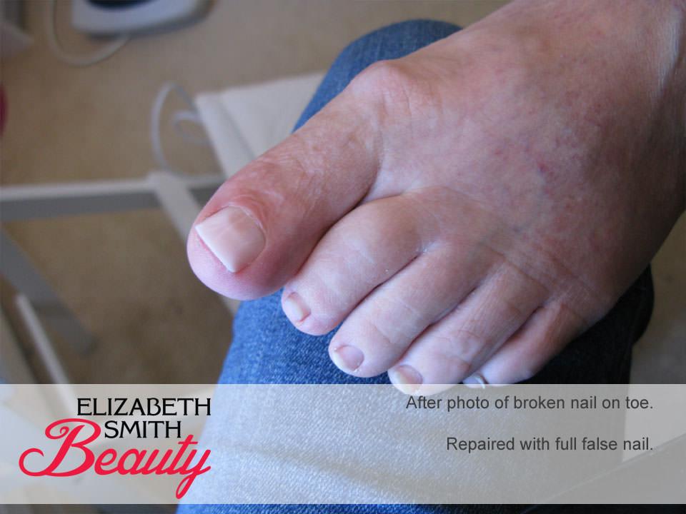broken toe nail