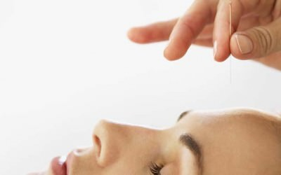 How can you have younger and healthy looking skin? Guest blog: Colette Ogle owns East Norwich Acupuncture