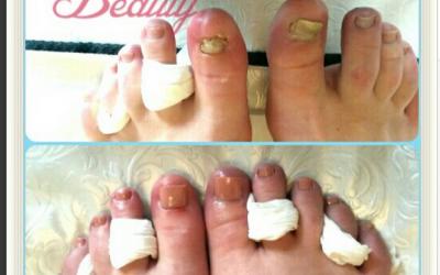 Toe nail damaged by high heels in nightclub