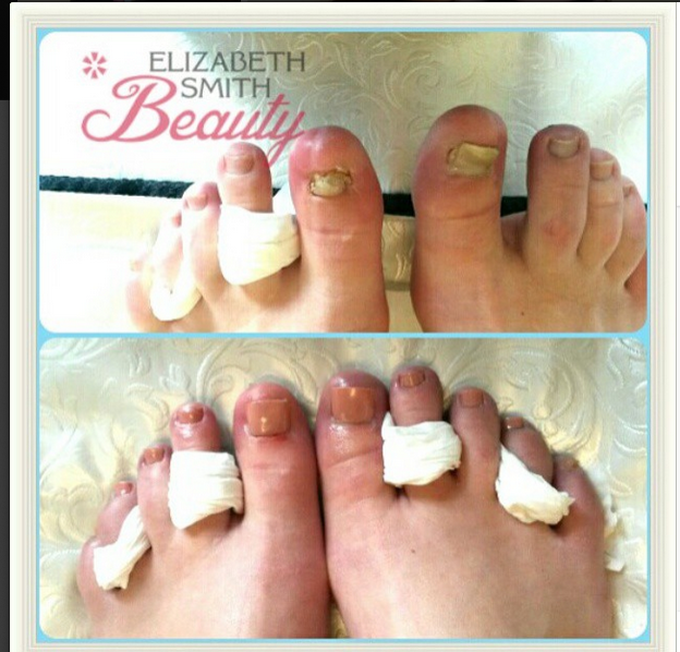 Toe nail damaged by high heels in nightclub - My Beauty Salon Website