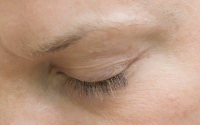 Natural Eyelashes with Latisse from Medica Depot