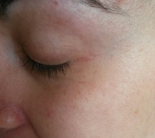After basic milia removal in Norwich