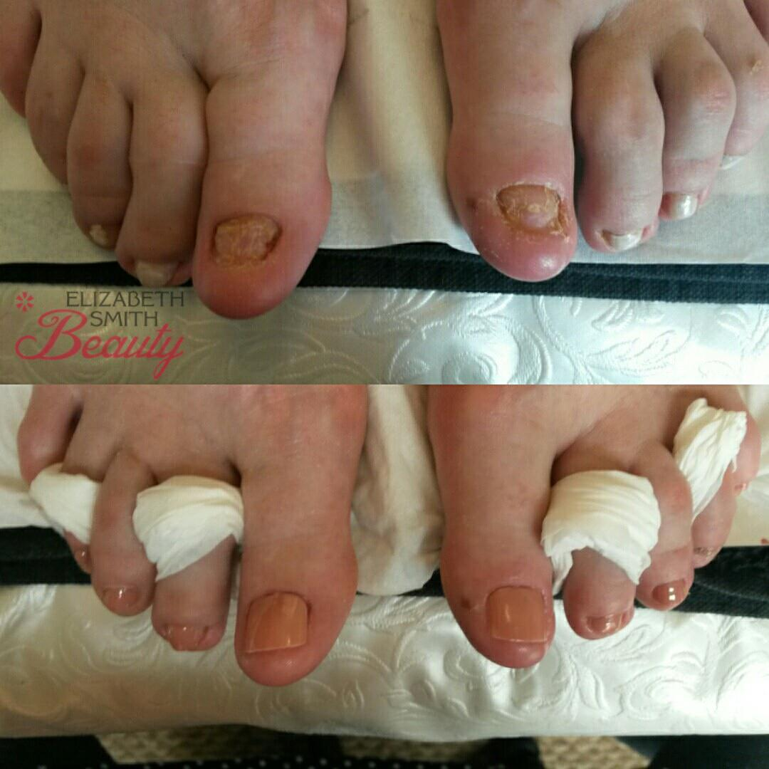 Very little natural toe nail left after ingrowing toe nail treatment ...