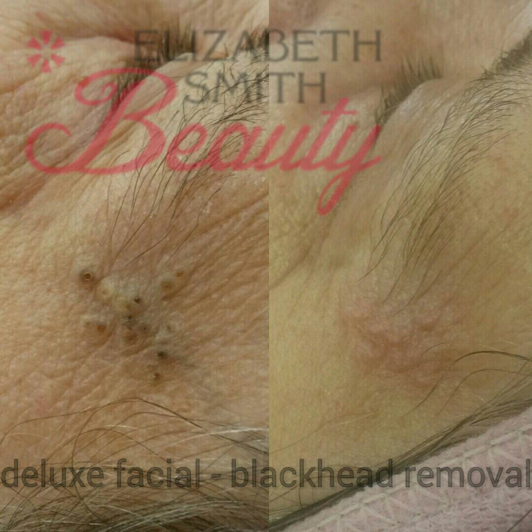 blackhead before and after