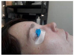 lash lift with shields on